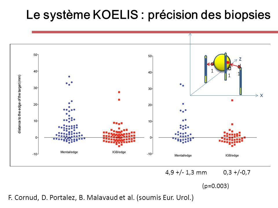 4,9 +/- 1,3 mm 0,3 +/-0,7 d1d1 d1d1 d1d1 z x (p=0.003) F. Cornud, D. Portalez, B. Malavaud et al. (soumis Eur. Urol.) Le système KOELIS : précision de