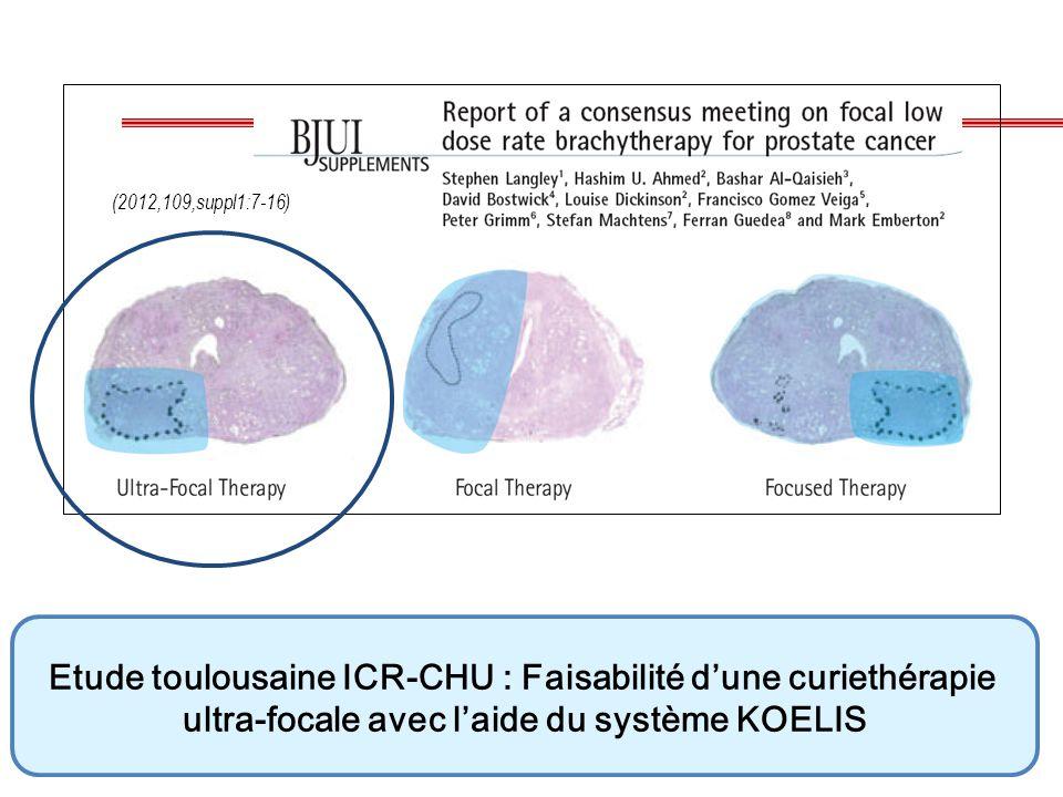 (2012,109,suppl1:7-16) Etude toulousaine ICR-CHU : Faisabilité d'une curiethérapie ultra-focale avec l'aide du système KOELIS