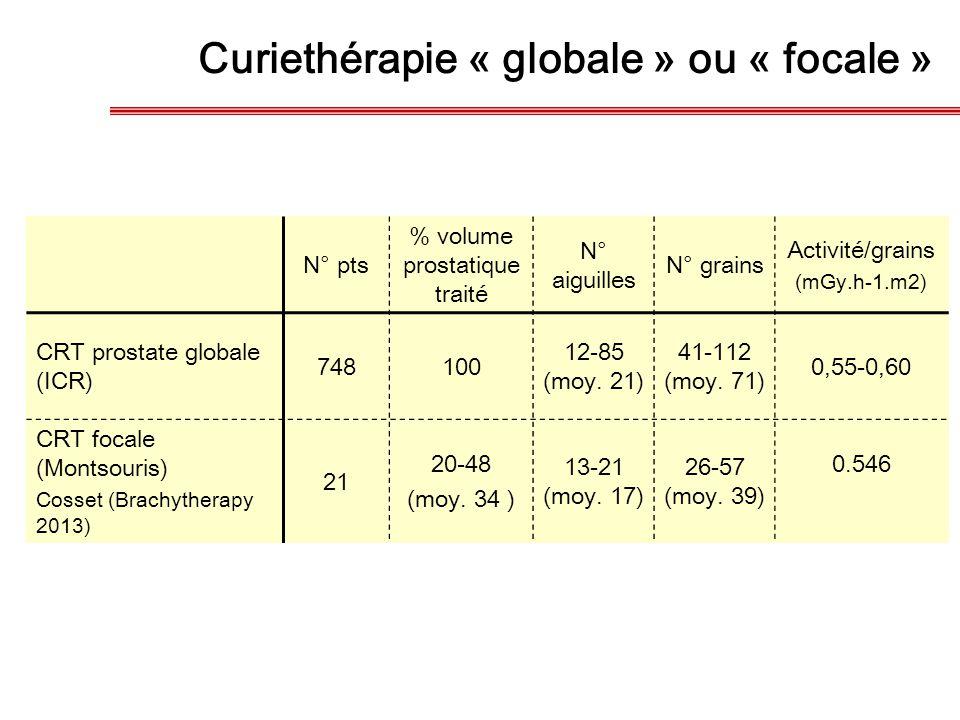 Curiethérapie « globale » ou « focale » N° pts % volume prostatique traité N° aiguilles N° grains Activité/grains (mGy.h-1.m2) CRT prostate globale (I