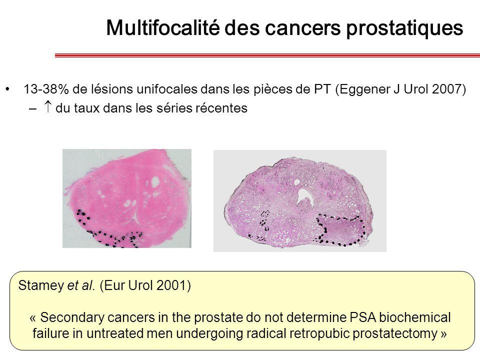 13-38% de lésions unifocales dans les pièces de PT (Eggener J Urol 2007) –  du taux dans les séries récentes Stamey et al. (Eur Urol 2001) « Secondar
