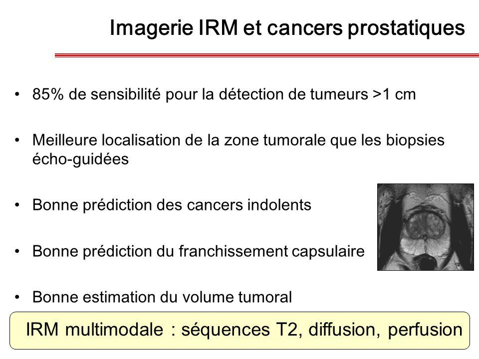 Imagerie IRM et cancers prostatiques 85% de sensibilité pour la détection de tumeurs >1 cm Meilleure localisation de la zone tumorale que les biopsies
