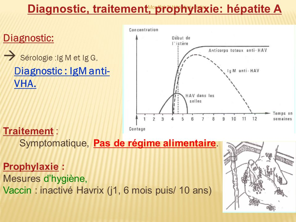 Diagnostic:  Sérologie :Ig M et Ig G, Diagnostic : IgM anti- VHA. Diagnostic, traitement, prophylaxie: hépatite A Traitement : Symptomatique, Pas de