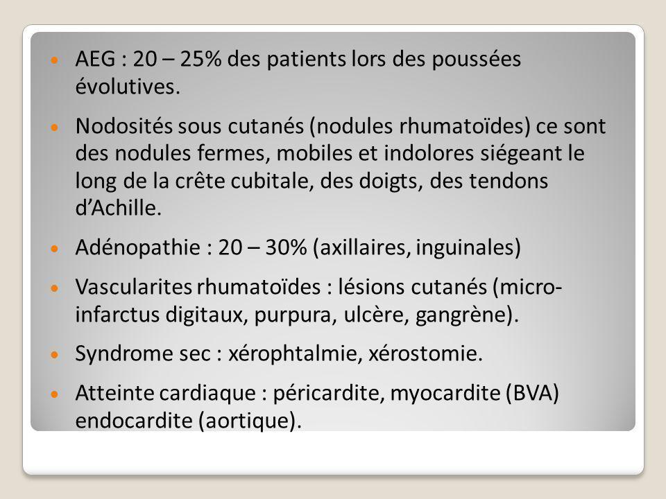  AEG : 20 – 25% des patients lors des poussées évolutives.  Nodosités sous cutanés (nodules rhumatoïdes) ce sont des nodules fermes, mobiles et indo