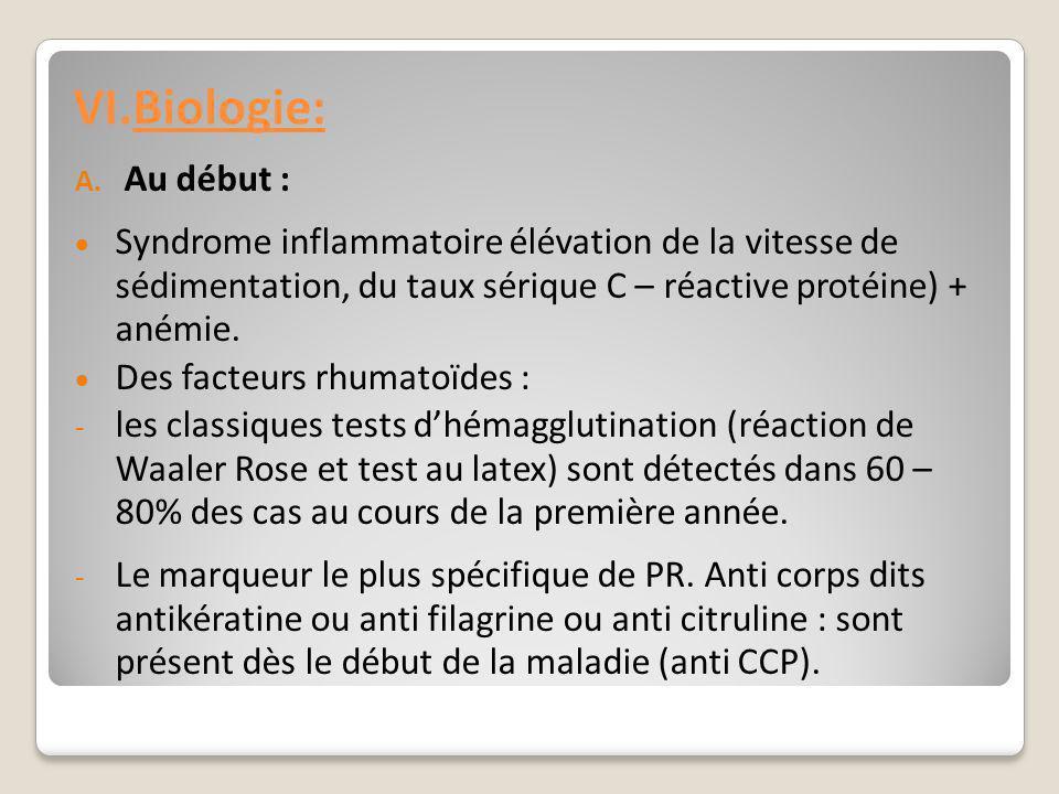 VI. VI.Biologie: A. Au début :  Syndrome inflammatoire élévation de la vitesse de sédimentation, du taux sérique C – réactive protéine) + anémie.  D