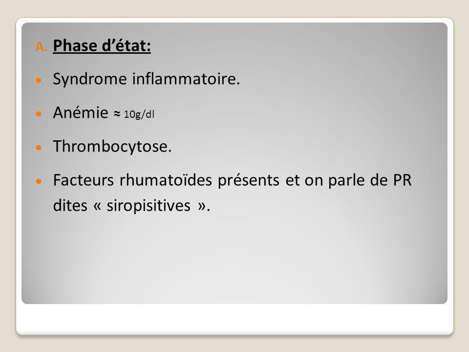 A. Phase d'état:  Syndrome inflammatoire.  Anémie ≈ 10g/dl  Thrombocytose.  Facteurs rhumatoïdes présents et on parle de PR dites « siropisitives