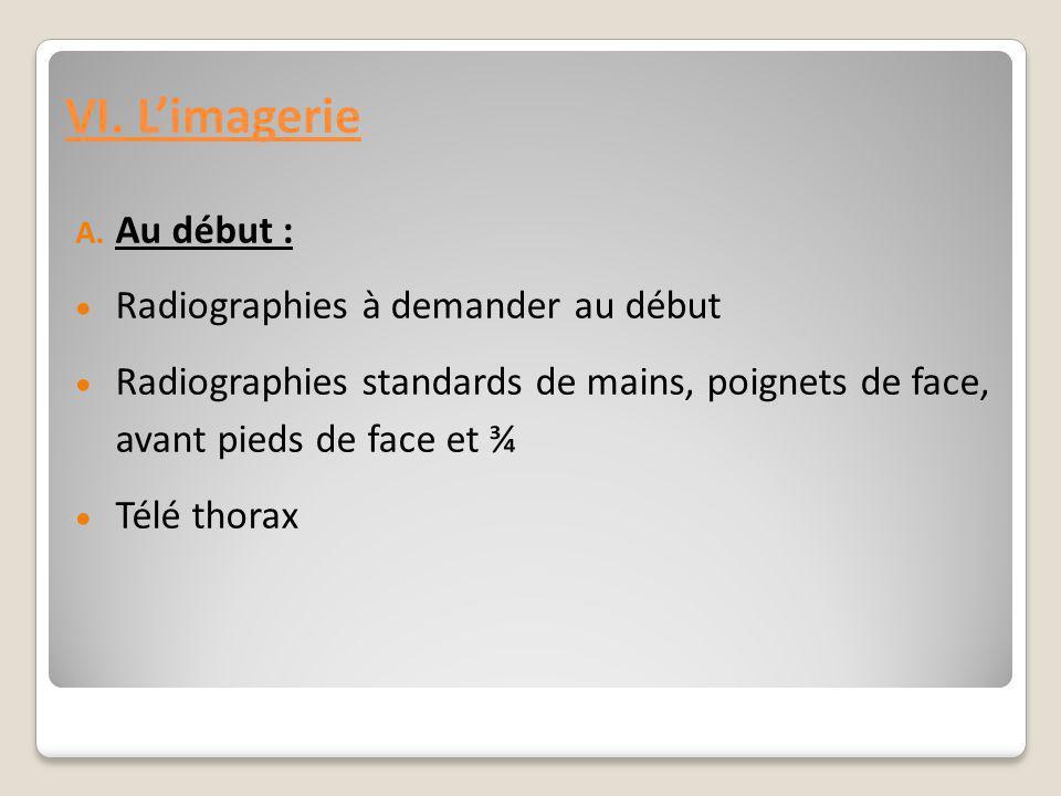 VI. L'imagerie A. Au début :  Radiographies à demander au début  Radiographies standards de mains, poignets de face, avant pieds de face et ¾  Télé