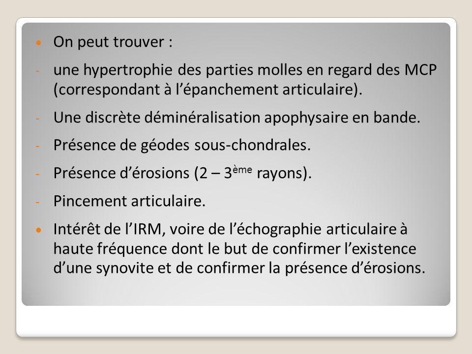  On peut trouver : - une hypertrophie des parties molles en regard des MCP (correspondant à l'épanchement articulaire). - Une discrète déminéralisati