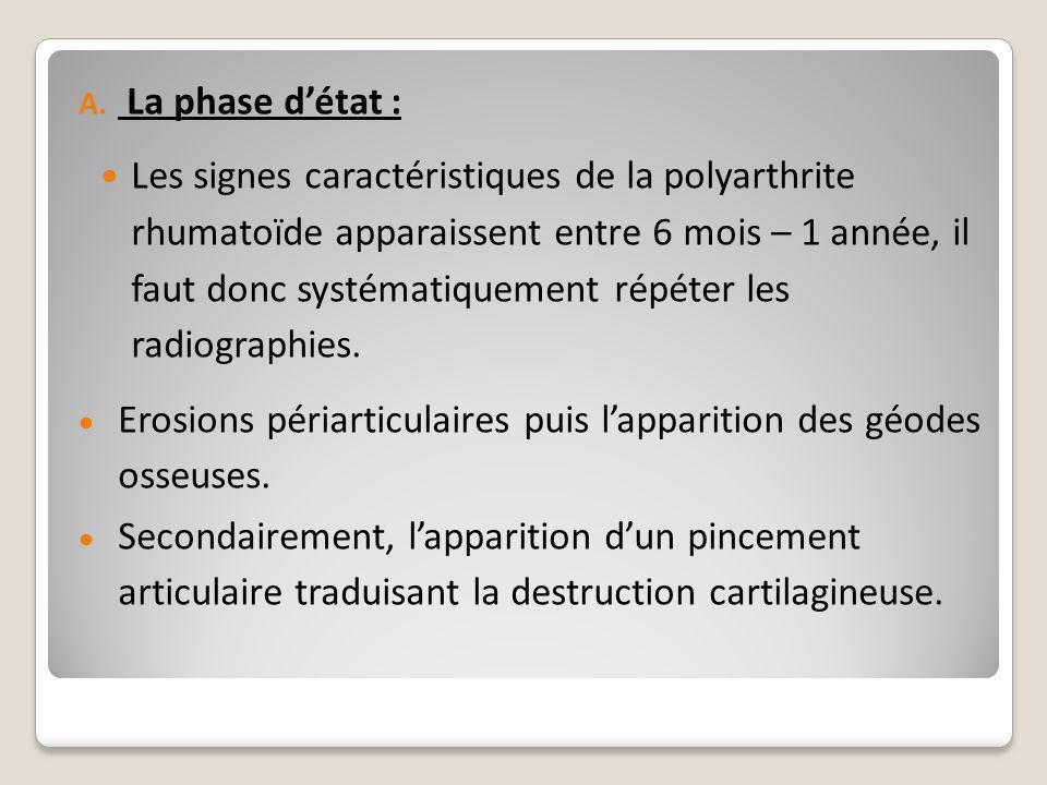 A. La phase d'état : Les signes caractéristiques de la polyarthrite rhumatoïde apparaissent entre 6 mois – 1 année, il faut donc systématiquement répé