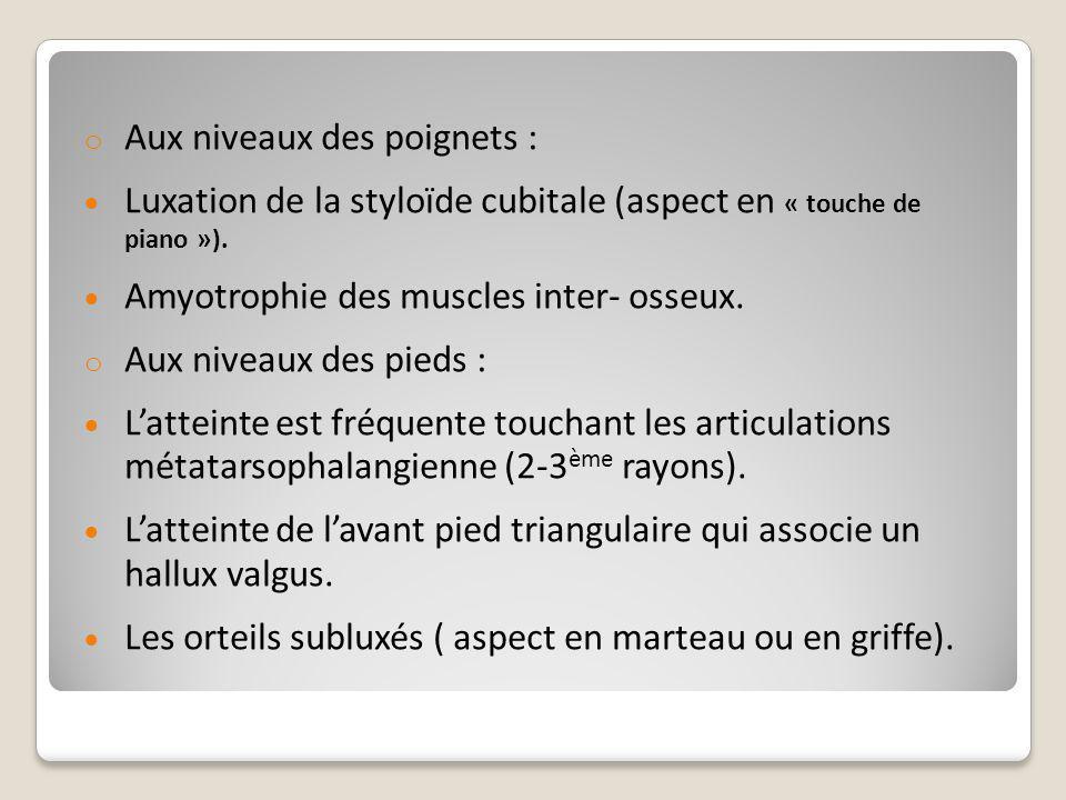 o Aux niveaux des poignets :  Luxation de la styloïde cubitale (aspect en « touche de piano »).  Amyotrophie des muscles inter- osseux. o Aux niveau