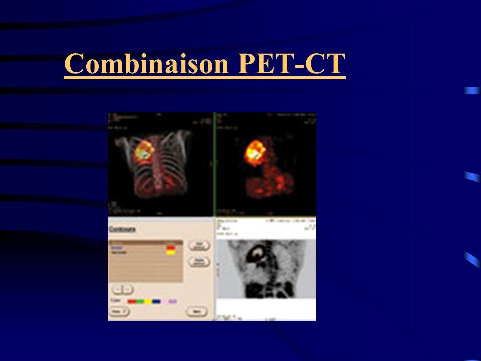 Combinaison PET-CT
