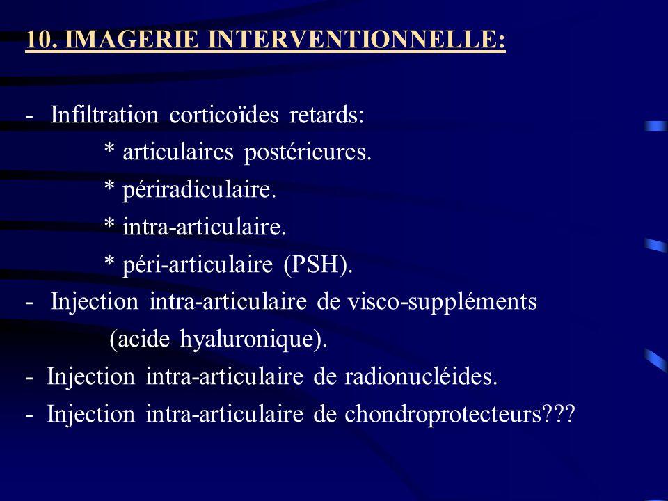 10. IMAGERIE INTERVENTIONNELLE: -Infiltration corticoïdes retards: * articulaires postérieures. * périradiculaire. * intra-articulaire. * péri-articul