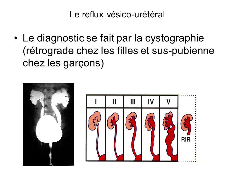 Le reflux vésico-urétéral Le diagnostic se fait par la cystographie (rétrograde chez les filles et sus-pubienne chez les garçons)