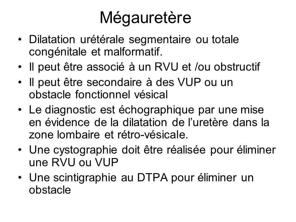 Mégauretère Dilatation urétérale segmentaire ou totale congénitale et malformatif. Il peut être associé à un RVU et /ou obstructif Il peut être second