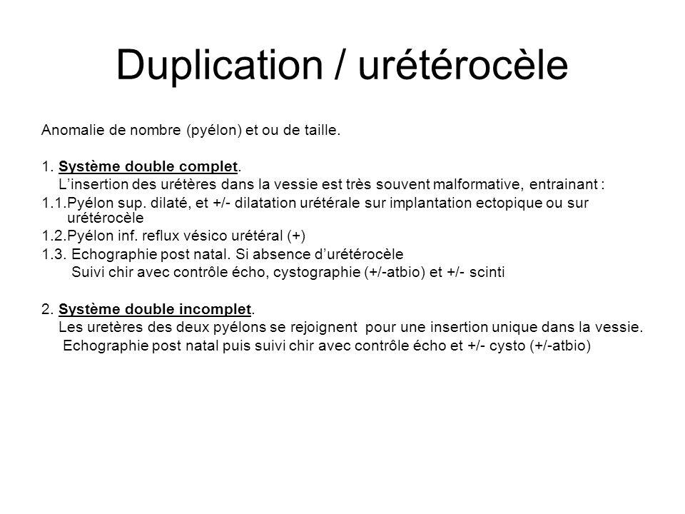 Duplication / urétérocèle Anomalie de nombre (pyélon) et ou de taille. 1. Système double complet. L'insertion des urétères dans la vessie est très sou