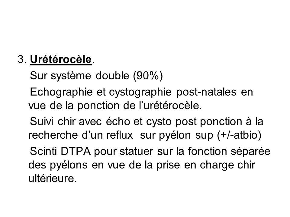 3. Urétérocèle. Sur système double (90%) Echographie et cystographie post-natales en vue de la ponction de l'urétérocèle. Suivi chir avec écho et cyst