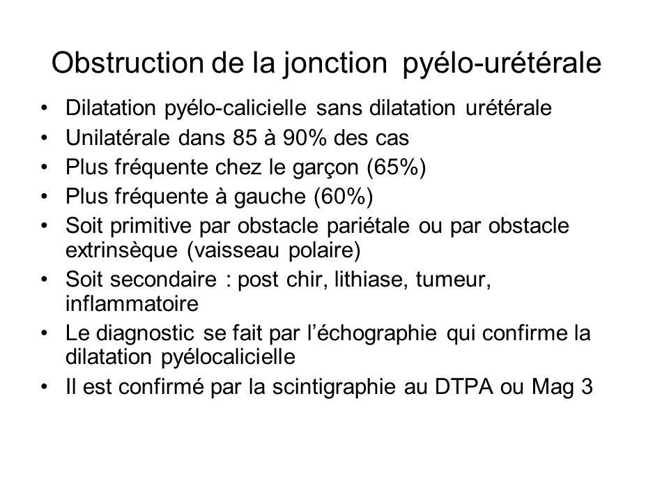 Obstruction de la jonction pyélo-urétérale Dilatation pyélo-calicielle sans dilatation urétérale Unilatérale dans 85 à 90% des cas Plus fréquente chez
