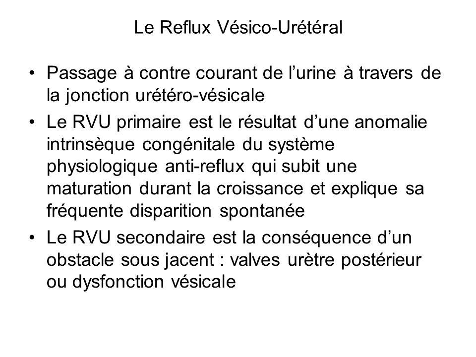 Le Reflux Vésico-Urétéral Passage à contre courant de l'urine à travers de la jonction urétéro-vésicale Le RVU primaire est le résultat d'une anomalie