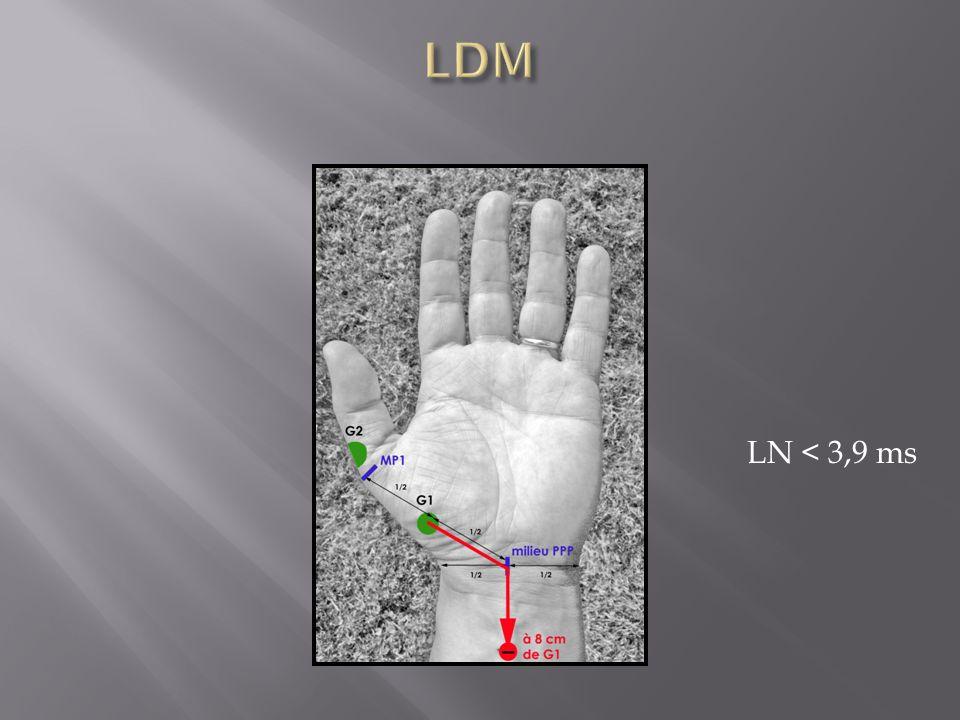 LN < 3,9 ms
