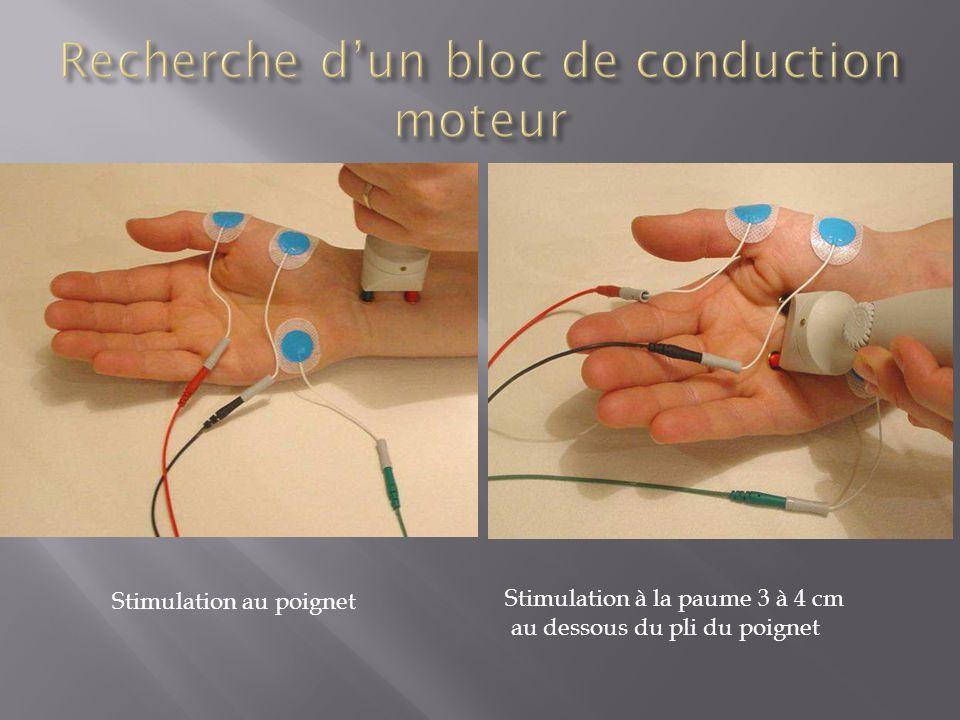 Stimulation à la paume 3 à 4 cm au dessous du pli du poignet Stimulation au poignet