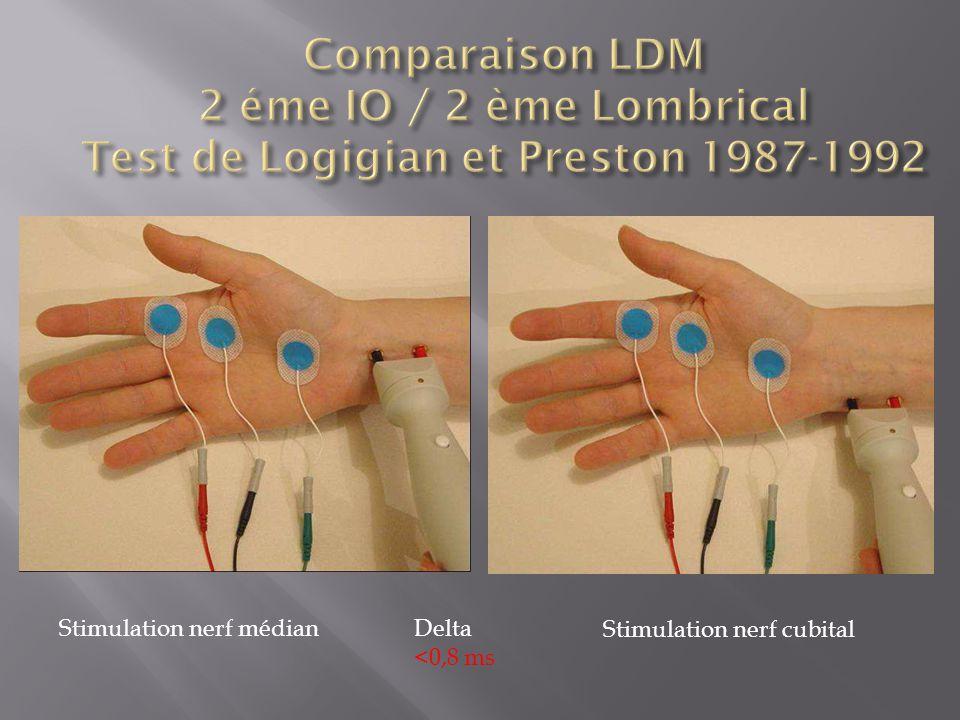 Stimulation nerf médian Stimulation nerf cubital Delta <0,8 ms