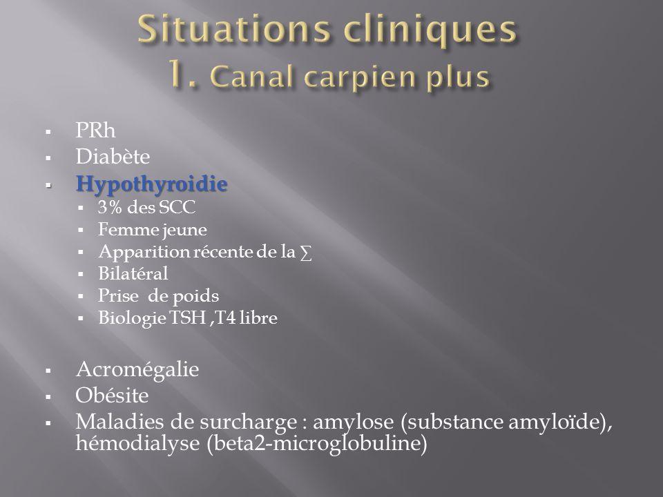  PRh  Diabète  Hypothyroidie  3% des SCC  Femme jeune  Apparition récente de la ∑  Bilatéral  Prise de poids  Biologie TSH,T4 libre  Acromégalie  Obésite  Maladies de surcharge : amylose (substance amyloïde), hémodialyse (beta2-microglobuline)