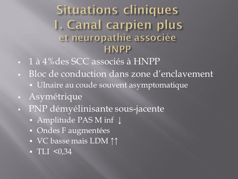  1 à 4%des SCC associés à HNPP  Bloc de conduction dans zone d'enclavement  Ulnaire au coude souvent asymptomatique  Asymétrique  PNP démyélinisante sous-jacente  Amplitude PAS M inf ↓  Ondes F augmentées  VC basse mais LDM ↑↑  TLI <0,34