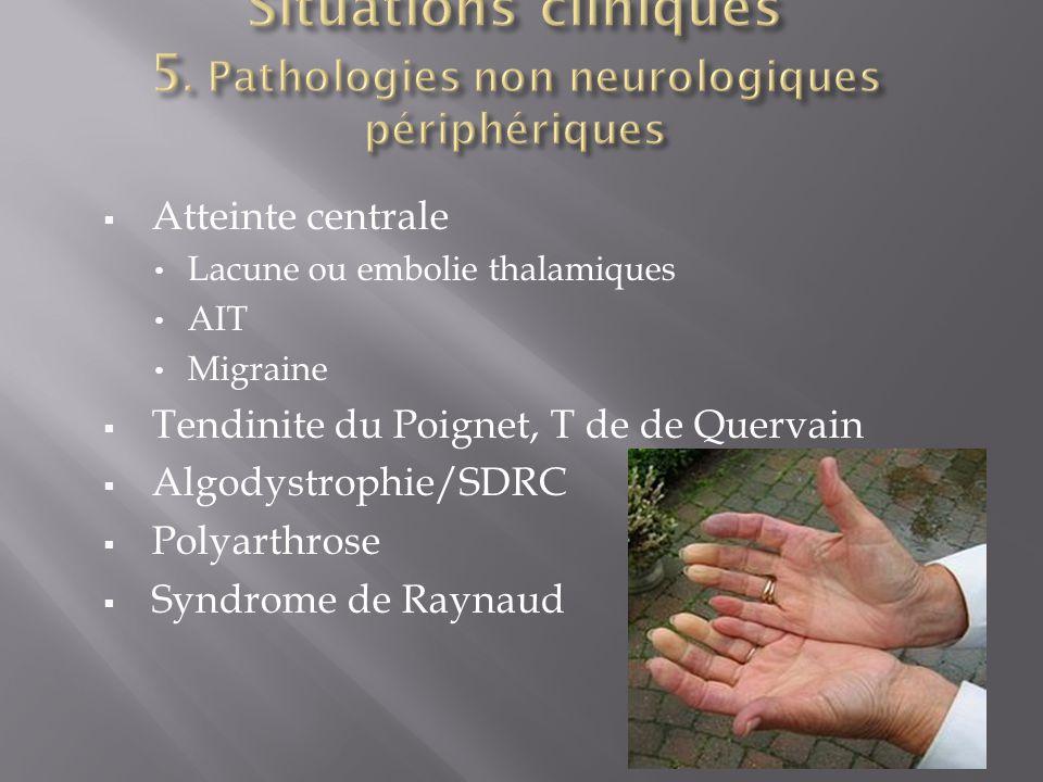  Atteinte centrale Lacune ou embolie thalamiques AIT Migraine  Tendinite du Poignet, T de de Quervain  Algodystrophie/SDRC  Polyarthrose  Syndrome de Raynaud