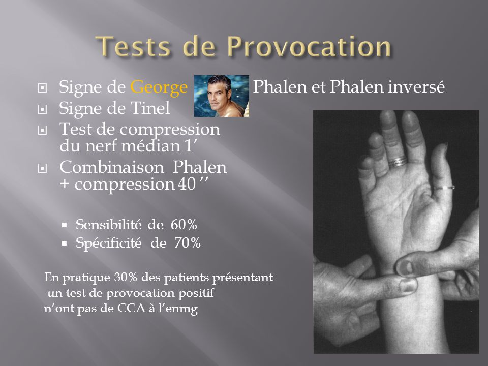  Signe de George Phalen et Phalen inversé  Signe de Tinel  Test de compression du nerf médian 1'  Combinaison Phalen + compression 40 ''  Sensibilité de 60%  Spécificité de 70% En pratique 30% des patients présentant un test de provocation positif n'ont pas de CCA à l'enmg