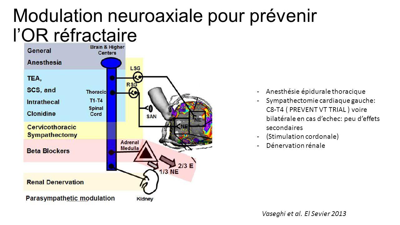 Modulation neuroaxiale pour prévenir l'OR réfractaire - Anesthésie épidurale thoracique -Sympathectomie cardiaque gauche: C8-T4 ( PREVENT VT TRIAL ) voire bilatérale en cas d'echec: peu d'effets secondaires -(Stimulation cordonale) -Dénervation rénale Vaseghi et al.