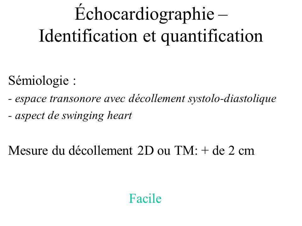 Échocardiographie – Identification et quantification Sémiologie : - espace transonore avec décollement systolo-diastolique - aspect de swinging heart