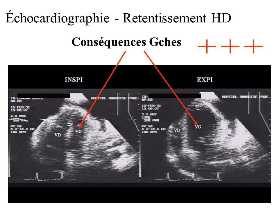 Échocardiographie - Retentissement HD Conséquences Gches