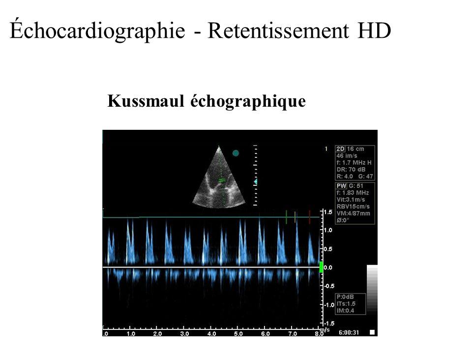 Échocardiographie - Retentissement HD Kussmaul échographique