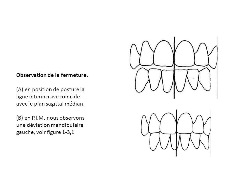 Observation de la fermeture. (A) en position de posture la ligne interincisive coïncide avec le plan sagittal médian. (B) en P.I.M. nous observons une