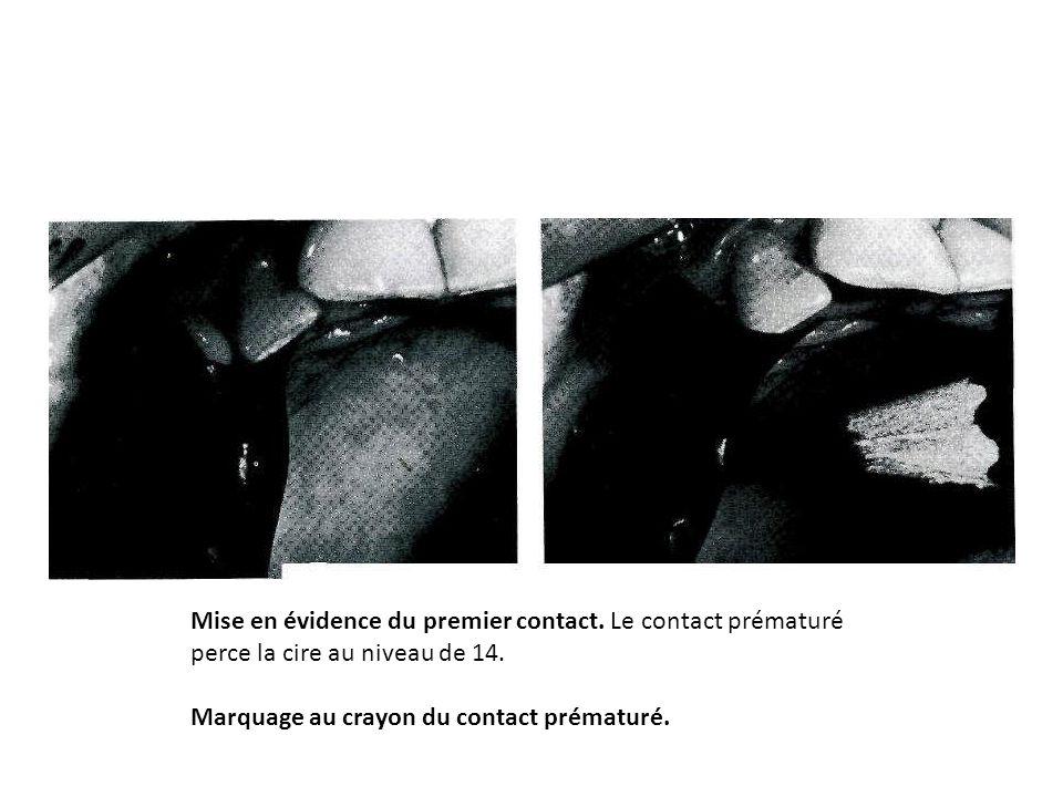 Mise en évidence du premier contact. Le contact prématuré perce la cire au niveau de 14. Marquage au crayon du contact prématuré.