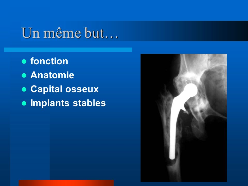 Un même but… fonction Anatomie Capital osseux Implants stables