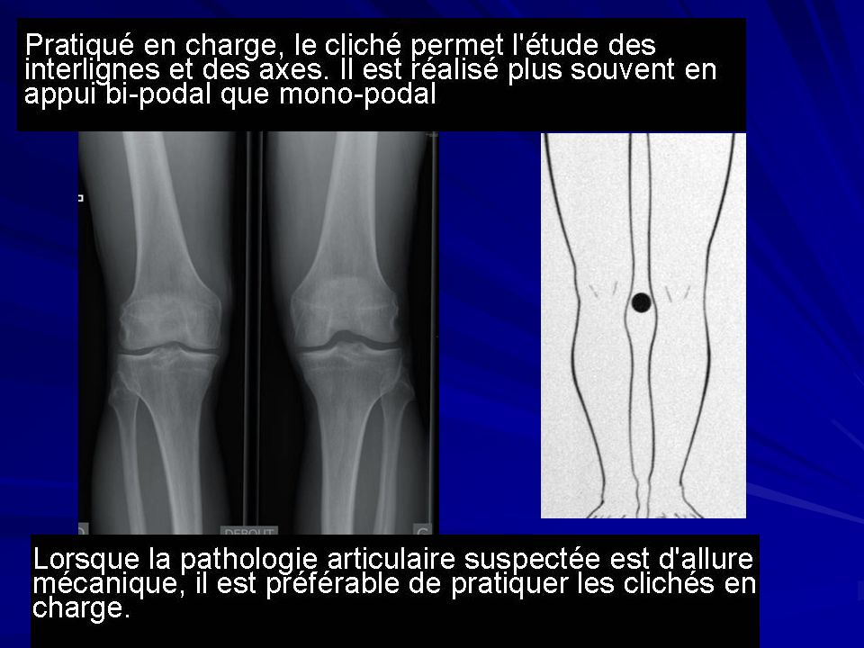 mesure normale tagt genou