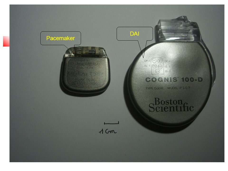 Pacemaker DAI