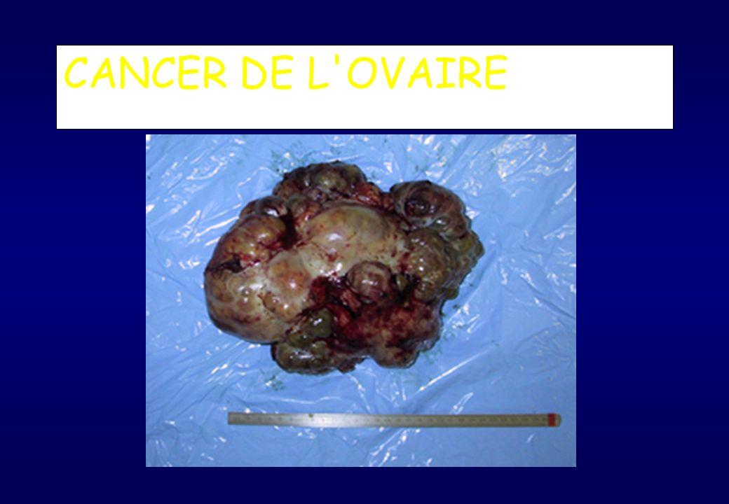 tumeur cancereuse ovaire