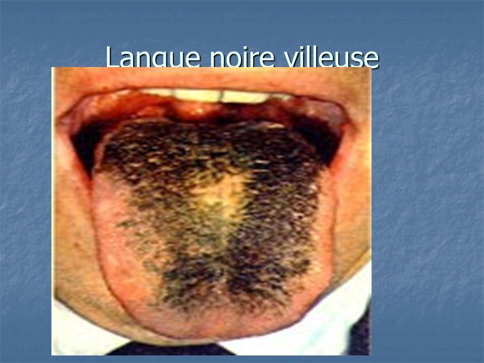 viagra sildenafil citrate 100mg