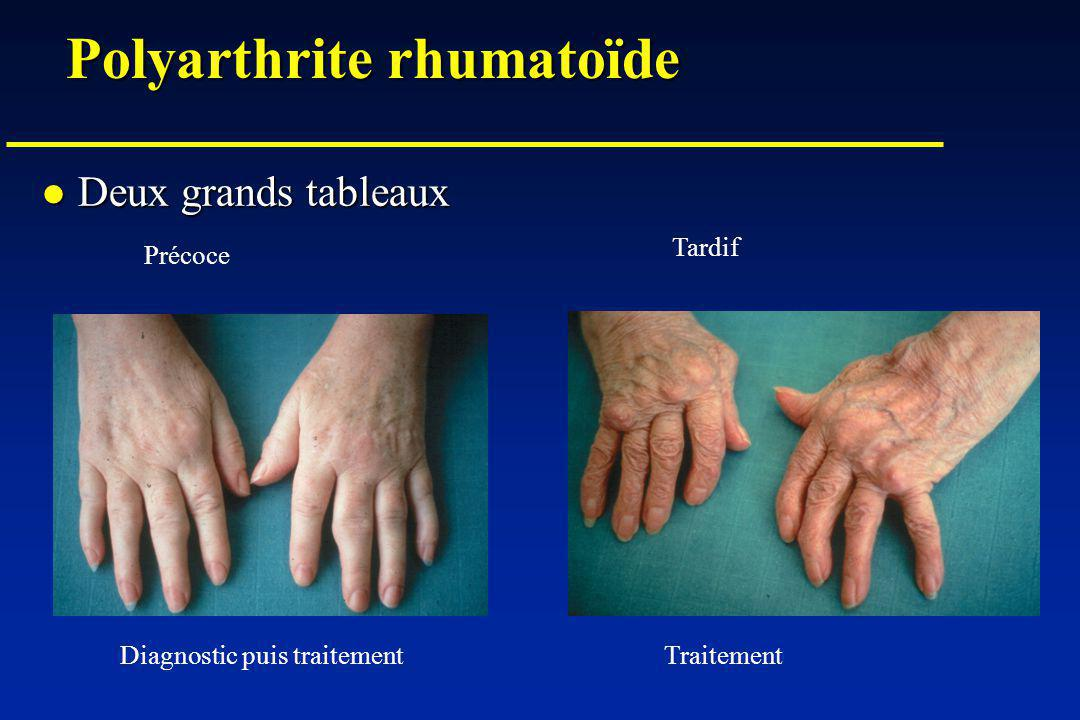 Boswellia pas cher - Arthrite : les solutions pour soulager la douleur, régénérer ou ...