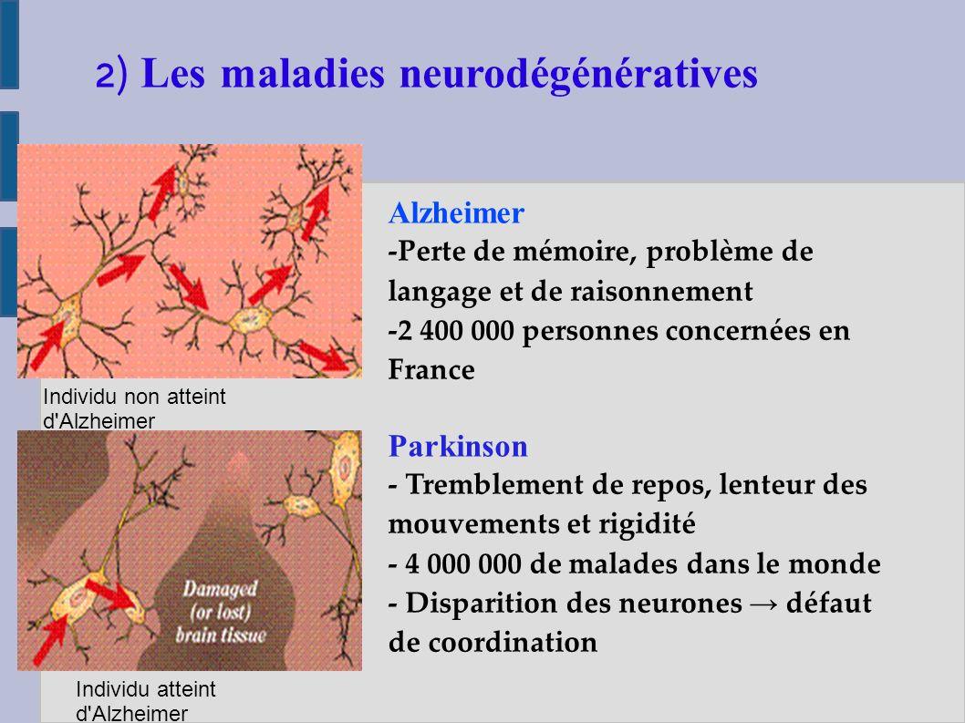 Probleme de memoire maladie