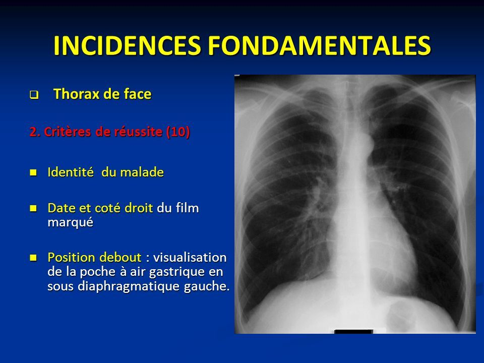 INCIDENCES FONDAMENTALES  Thorax de face 2.