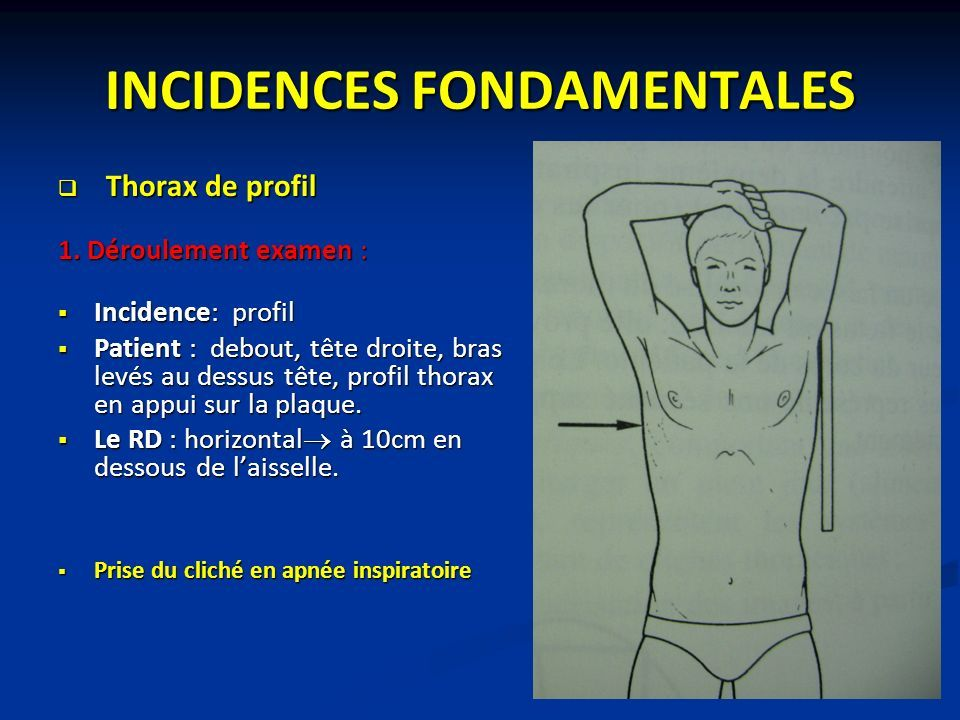 INCIDENCES FONDAMENTALES  Thorax de profil 1.