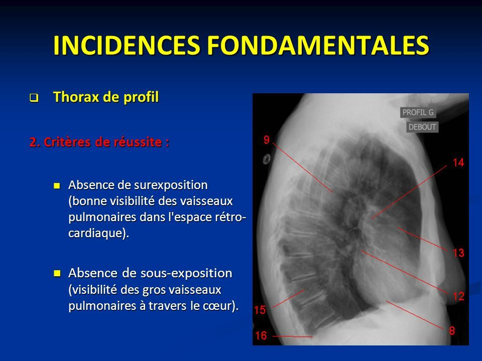 INCIDENCES FONDAMENTALES  Thorax de profil 2.