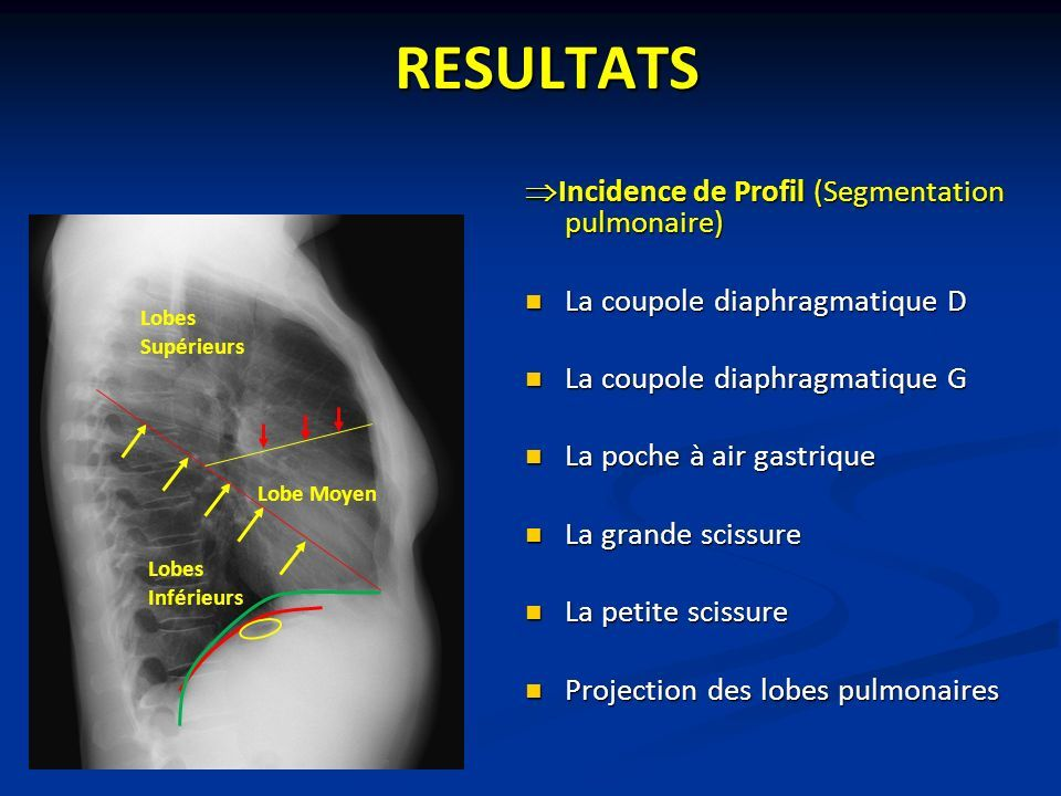 RESULTATS  Incidence de Profil (Segmentation pulmonaire) La coupole diaphragmatique D La coupole diaphragmatique G La poche à air gastrique La grande scissure La petite scissure Projection des lobes pulmonaires Lobes Supérieurs Lobes Inférieurs Lobe Moyen